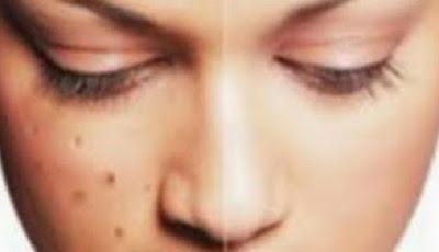 10 Cara Alami Menghilangkan Noda Hitam Bekas Jerawat Di Kulit Wajah
