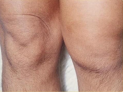 artritis-sintomas-guia