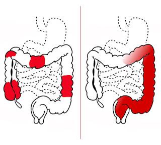 ما هو تشخيص التهاب القولون التقرحي