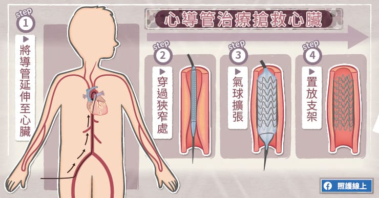 心導管治療搶救心臟
