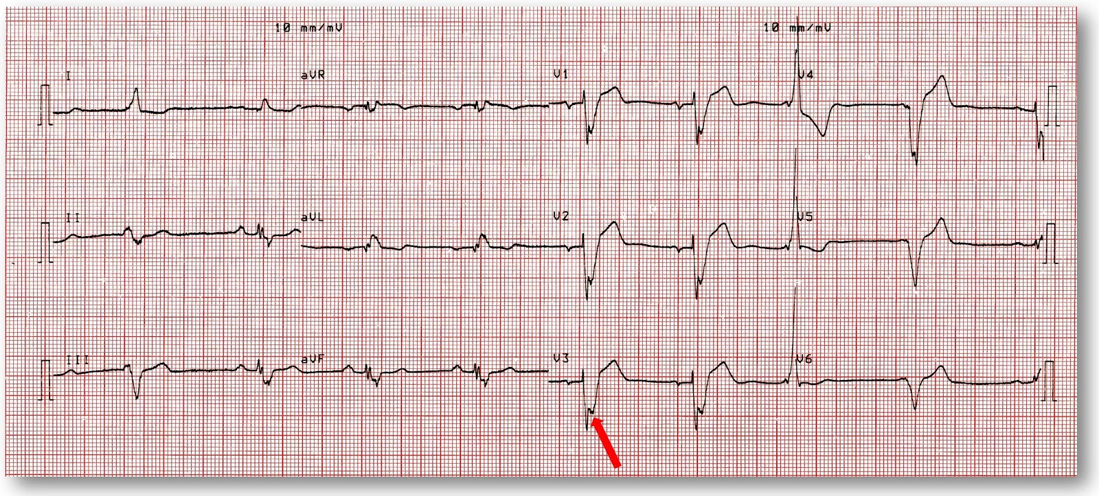 Andrew R Houghton Cabreras Sign And The Diagnosis Of Old Mi In Lbbb