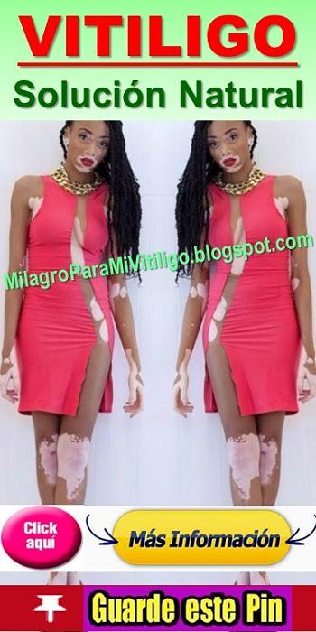 que-es-el-vitiligo-como-se-cura-tratamiento-natural