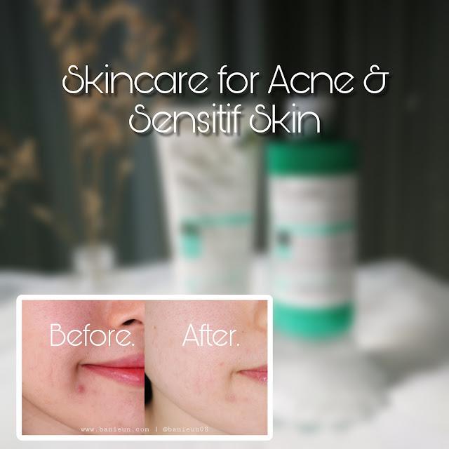 Skincare for Acne and sensitif skin