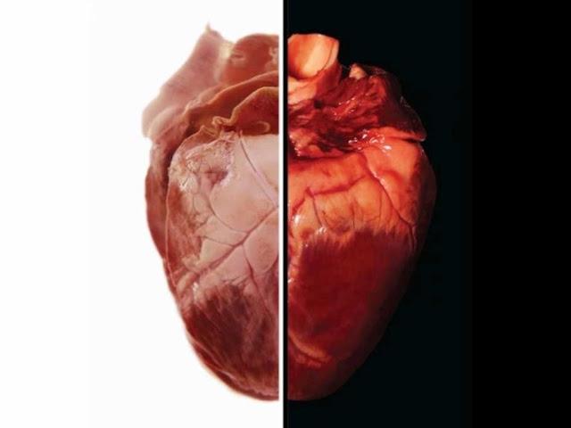 Il trapianto di cuore di maiale negli esseri umani potrebbe essere realtà nel 2021