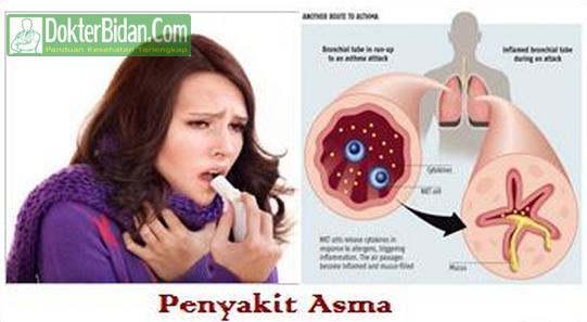 Penyakit Asma - Penyebab Gejala Pengobatan dan Pencegahan Terbaik