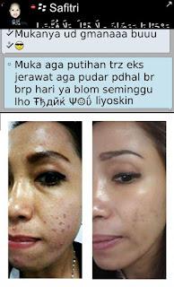 Rekomendasi Krim Pemutih Wajah Yang Sudah Banyak Testi, Menghilangkan Flek Bintik Bintik Hitam Di Wajah Dengan Cepat Aman BPOM Harga Terjangkau Untuk Remaja Dan Dewasa Pria Dan Wanita Tanpa Merkuri