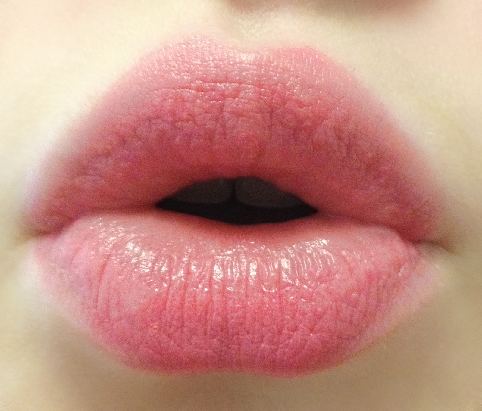 Best Helping Perfect Solution: Natural Ways to Make Your Lips Pink