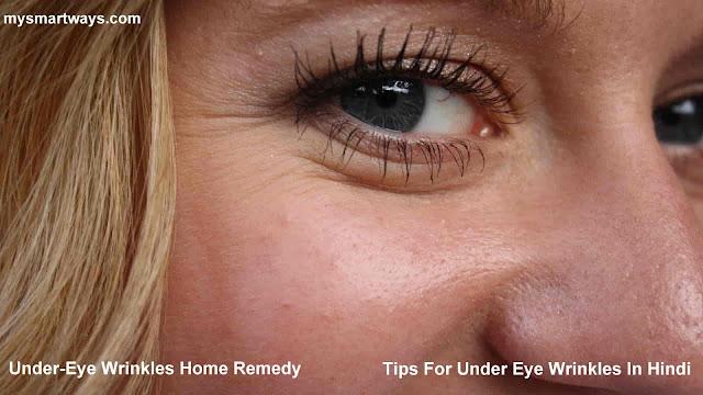 Under-Eye Wrinkles Home Remedy-Tips For Under Eye Wrinkles In Hindi