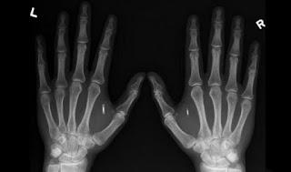 Какие компании и зачем вживляют сотрудникам RFID-имплантаты?
