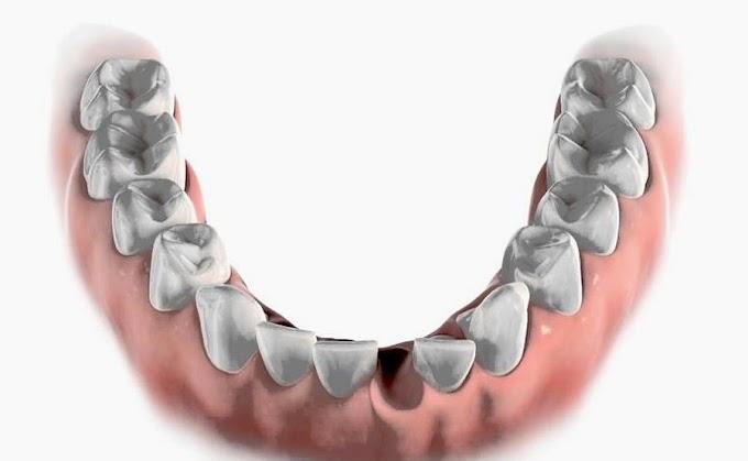 ORTODONCIA: Clase II esqueletal, tratamiento extracción de un incisivo inferior - Reporte caso clínico