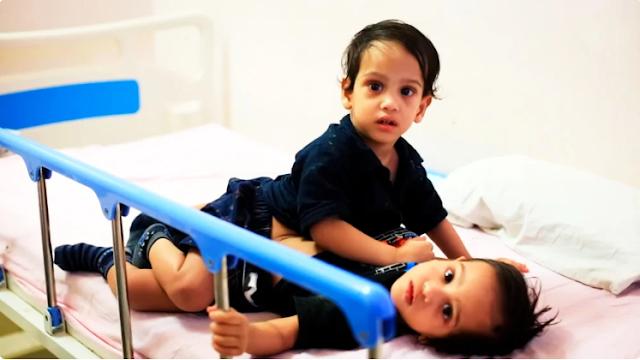 Братьев-близнецов из Индии разъединили еще в 2017, что с мальчишками теперь?
