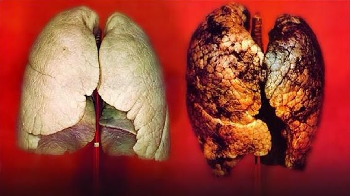Serious Warning! See the 7 Hidden Signs of Lung Cancer You Should NEVER Ignore Today