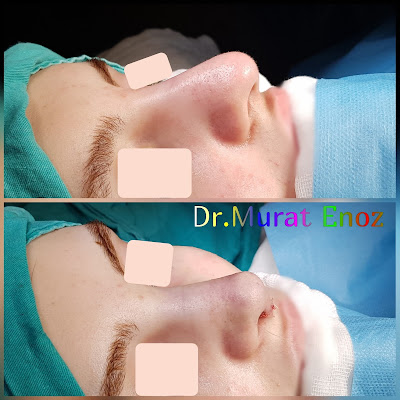 Rhinoplasty Without Breaking Bone in Istanbul