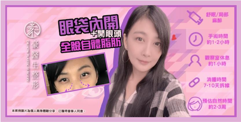 【素人分享】眼袋內開合併全臉自體脂肪~~當了媽,也要保持少女模樣!