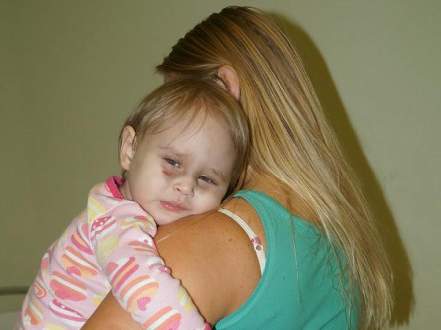 История двухлетней Алисы, над которой издевались родные: «Она была вся чёрная от побоев и обожжена кипятком»