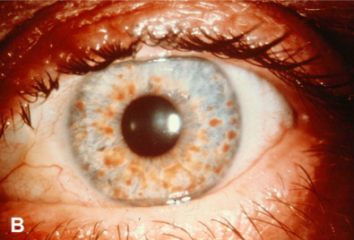 神经纤维瘤的眼部的虹膜斑块(Lisch nodules),虹膜表面散在大量圆形或类圆形的棕黄色丘疹