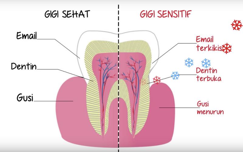 Begini Cara Mengatasi Gigi Sensitif