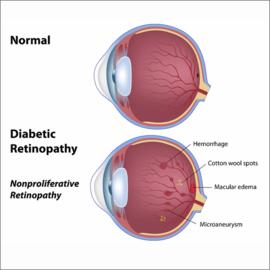 Komplikasi Mata pada Penderita Diabetes