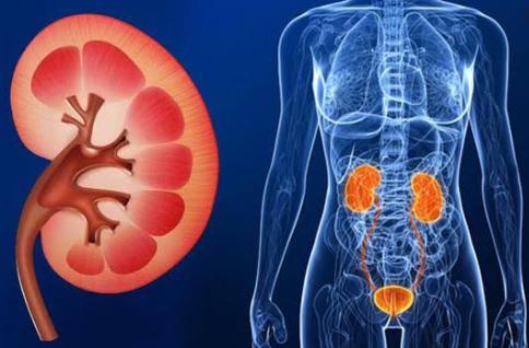 Waspadai 5 Penyebab Penyakit Gagal Ginjal dan Kenali Gejalanya Berikut Ini!