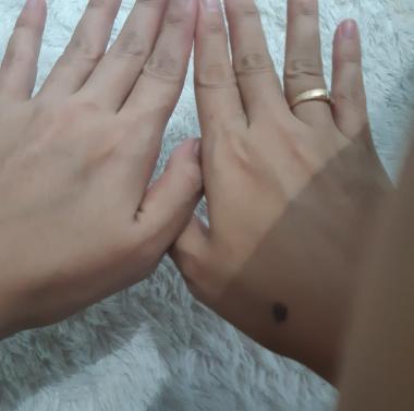 Tangan Kanan Tanpa Menggunakan Hand Body, Tangan Kiri Menggunakan Hand Body Lotion Scarlett