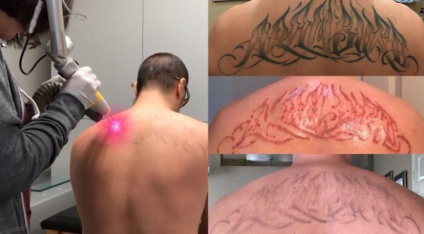 Laser Menghilangkan atau Menghapus Tato Secara Permanen (Laser Removal Tatto)