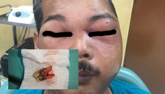 Lelaki Terseksa Tanggung Sakit Pipi Berlubang Penuh Nanah Akibat Sapu Minyak Motor Pada Gigi