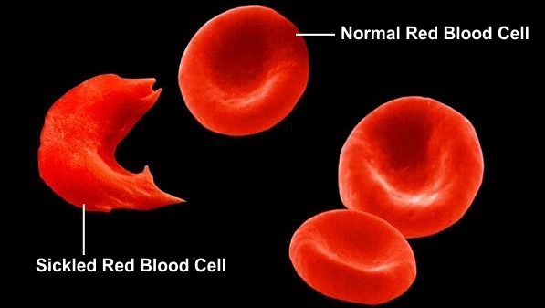 Normal Red Blood Cells and Sickled Red Blood Cell Seen In Sickle Cell Disease