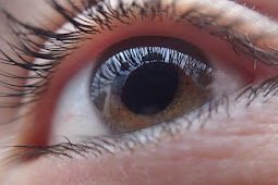 Penyebab Dan Pengobatan Katarak - Operasi Mata Katarak