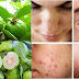 If You Want To Beat Acne, Wrinkles and Dark Spots, Use The Leaves Of This Fruit