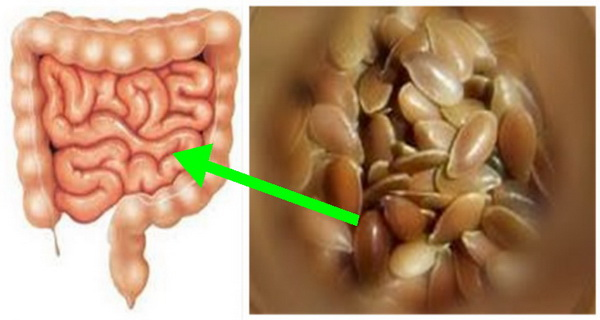 Get rid of the colon TOXIC in 7 days by drinking this mixture!