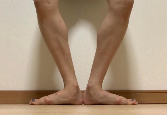 バレエ整体 船橋 膝の故障