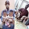 Conjoined female twins separated at the University of Ilorin Teaching Hospital. PHOTOS