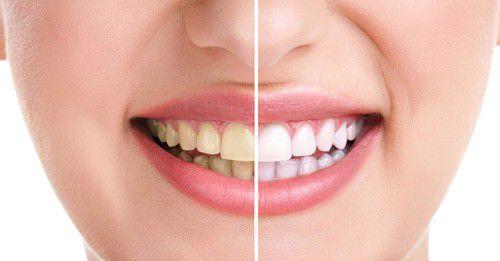 2 cách lấy cao răng tại nhà an toàn bắt buộc phải nhớ