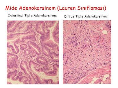 mide adenokarsinomu lauren tarafından diffüz ve intestinal tip olarak 2'ye ayrılır
