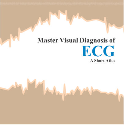 Master Visual Diagnosis of ECG - A Short Atlas (2013) [PDF]
