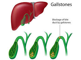http://www.drnikhilagnihotri.com/gallbladder-stones