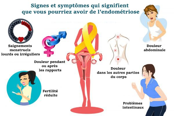 Signs and Symptoms That Mean You May Have Blood ...