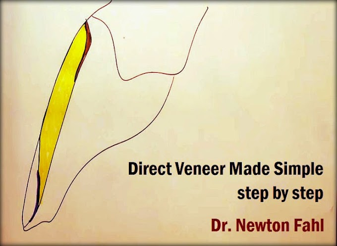 DIRECT COMPOSITE VENEER Step by Step - Dr. Newton Fahl