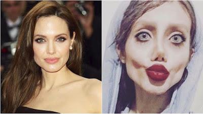 joven iraní que se operó para parecerse a Angelina Jolie