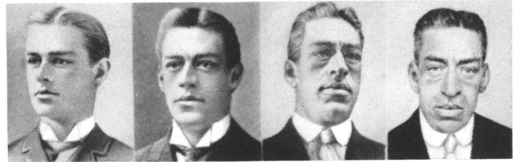 фото мужчины больного акромегалией в молодости и в пожилом возрасте