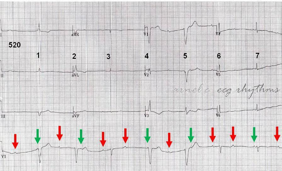 ECG Rhythms: Practicing Ladder Diagram