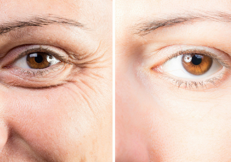 How to Manage Under-Eye Wrinkles