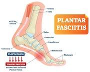 Sakit Tumit Kaki? Antara Plantar Fasciitis atau Heel Spurs penyebabnya.