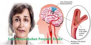 Obat Stroke Ringan