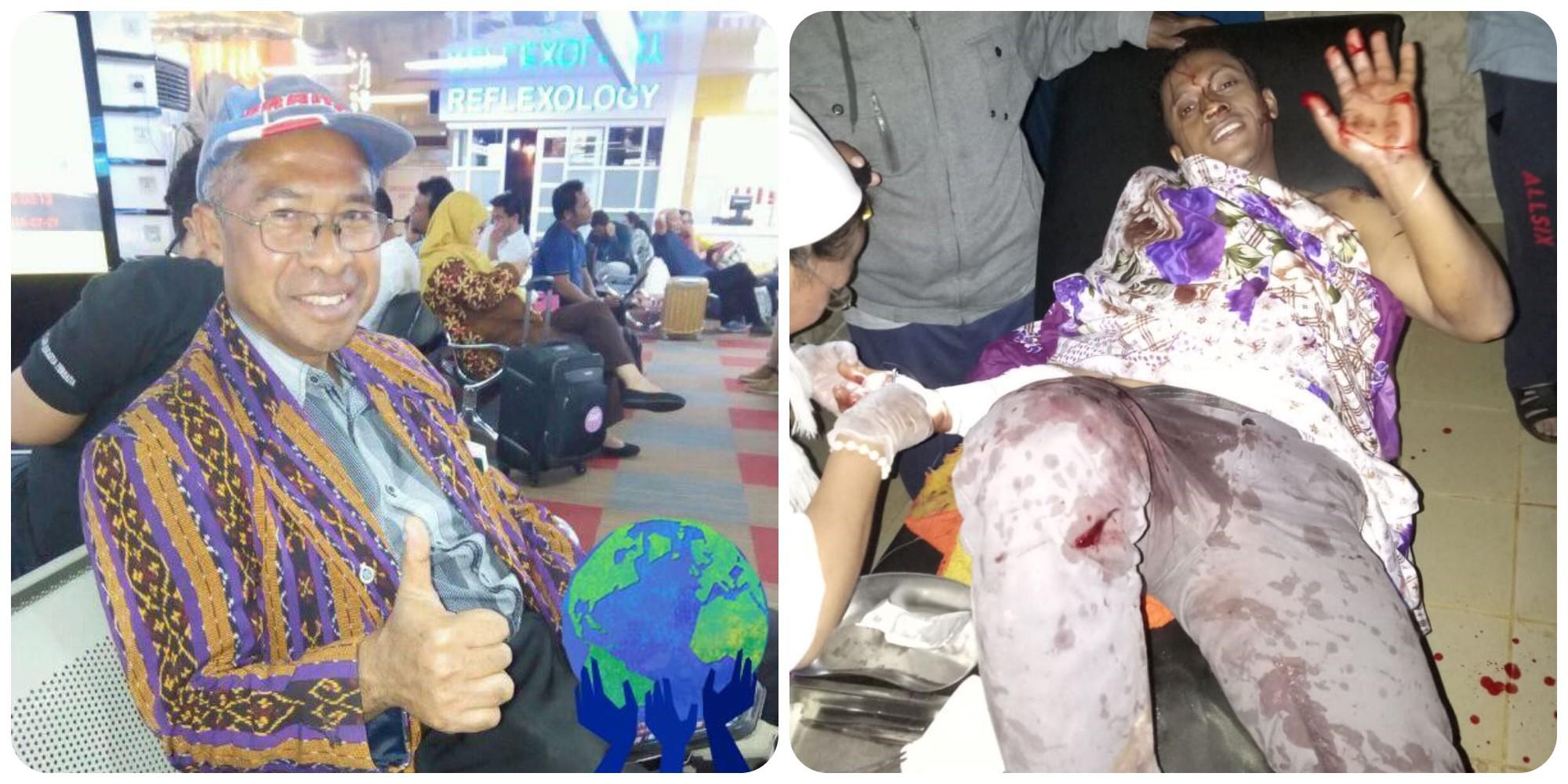 Diserang Bandit Bersenjata, Begini Kondisi Pater Alex Menurut Dubes RI di Madagaskar