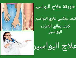 طريقة علاج البواسير