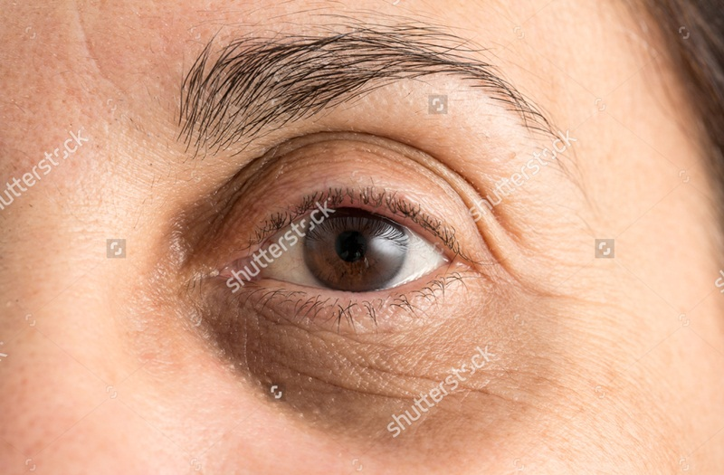 Home Remedies To Get Rid Of Dark Circles