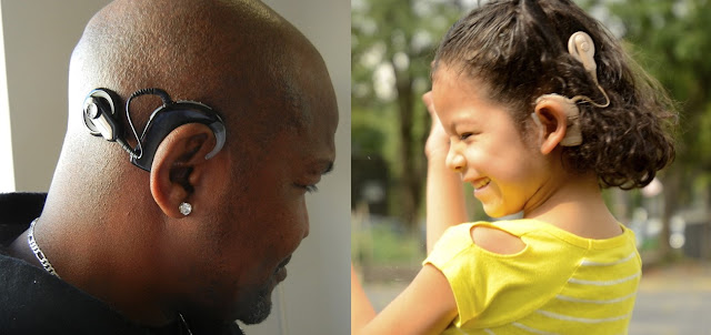 cost of cochlear implant surgery in India