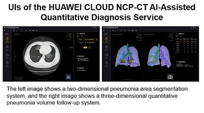 HUAWEI CLOUD เปิดตัวอุปกรณ์ผู้ช่วย AI วิเคราะห์ 'COVID-19' ทราบผลแบบ CT Quantification ภายในไม่กี่วินาที