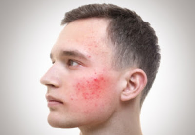 images What is allowed and not allowed is at least Roaccutane medicine
